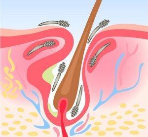Демодекоз у человека, симптомы и лечение демодекоза на лице