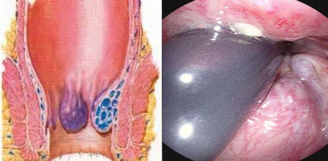 Как выглядит внутренний геморрой фото, первые симптомы и схема лечения