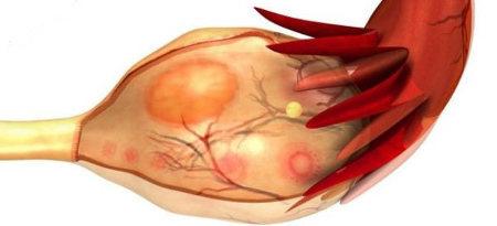 Киста желтого тела яичника: причины, симптомы и способы лечения