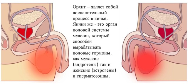 Орхит, что это такое? Симптомы и лечение в домашних условиях