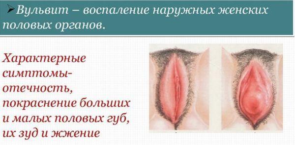 Вульвит у женщин
