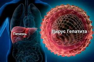 Гепатит А: что это такое, признаки и лечение
