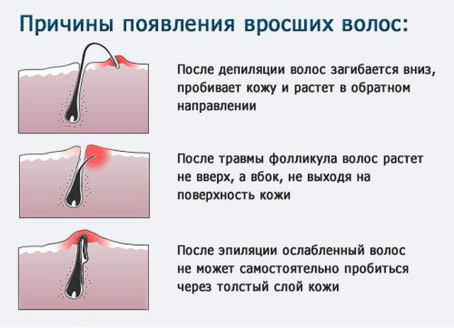 Вросший волос в области бикини, на ногах: как избавиться в домашних условиях