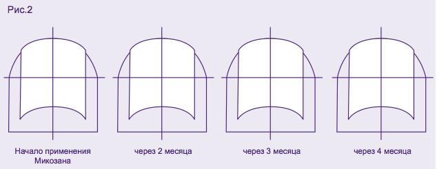 Микозан, инструкция по применению от грибка ногтей