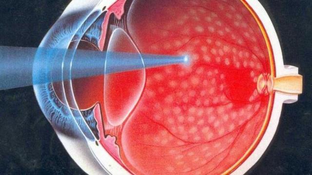 Абиотрофия сетчатки глаза: что это за болезнь?