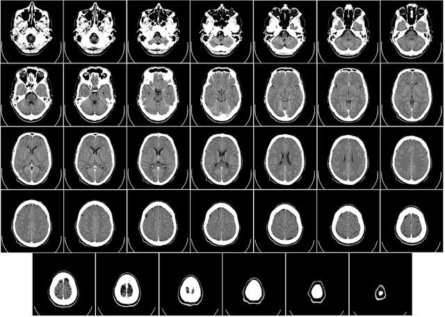 Арахноидит головного мозга: симптомы и последствия