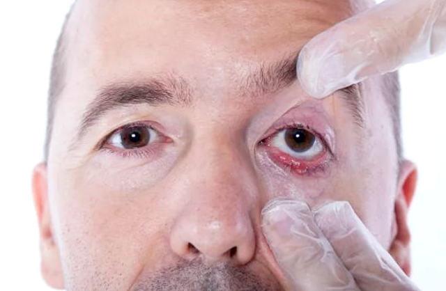 Что такое халязион: симптомы и лечение