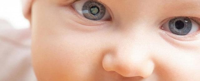 Симптомы катаракты, лечение и способы профилактики