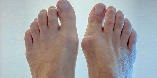 Лечение артрита стопы, симптомы и подробные фото