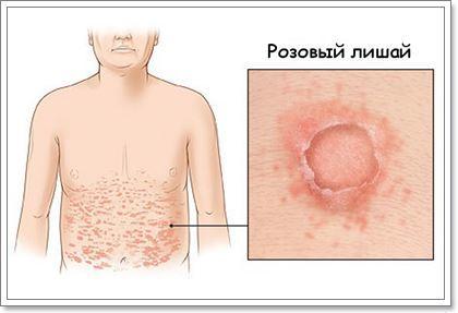Как лечить розовый лишай у человека: препараты и народные средства