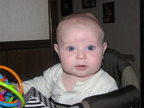 Кефалогематома на голове у новорожденного