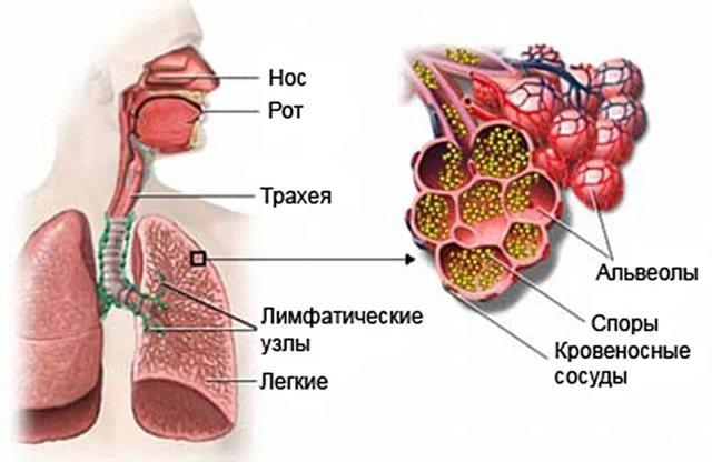Аспергиллез: симптомы у человека, диагностика и лечение