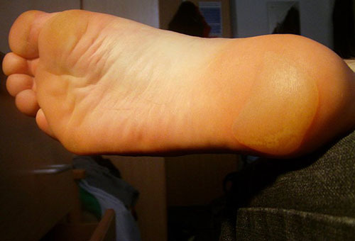 Водяная мозоль на пальце ноги, пятке: лечение в домашних условиях