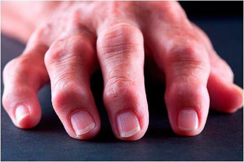 Схема лечения артрита пальцев рук, симптомы и народные средства