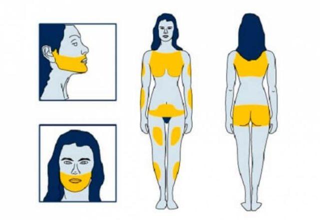 Гирсутизм: что это такое? Фото, причины и лечение