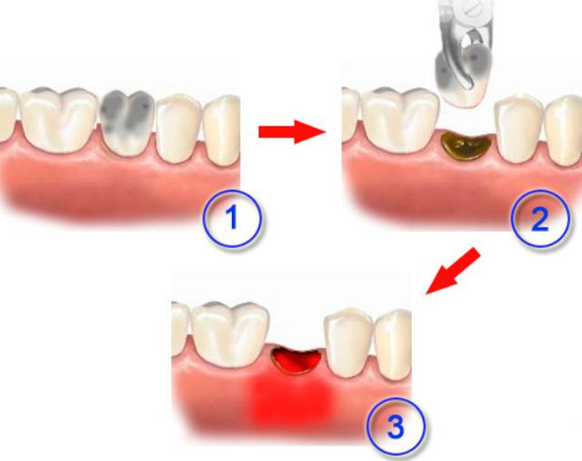 Альвеолит лунки после удаления зуба: причины и схема лечения