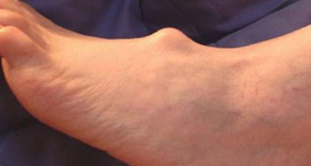 Гигрома: что это такое? Фото, симптомы и лечение