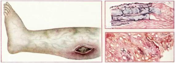 Анаэробная инфекция в хирургии