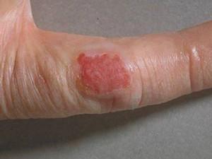 Болезнь Боуэна: что это такое? Симптомы и схема лечения