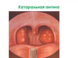 Чем лечить ангину дома – лечение в домашних условиях: безопасные и эффективные средства