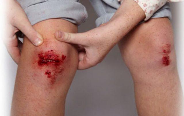 Симптомы столбняка у человека, причины и лечение