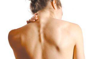 Как лечить остеохондроз шейного отдела позвоночника в домашних условиях