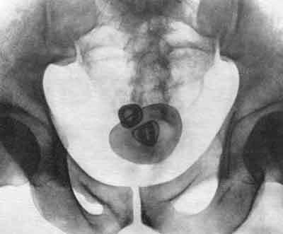 Как лечить камни в мочевом пузыре