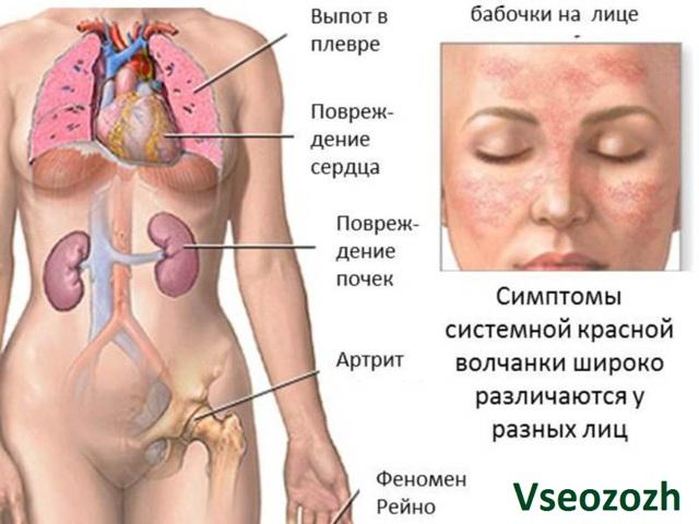 Красная волчанка, что это за болезнь? Фото, лечение и продолжительность жизни