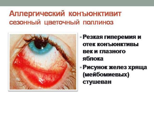 Аллергический конъюнктивит у взрослых: симптомы и лечение