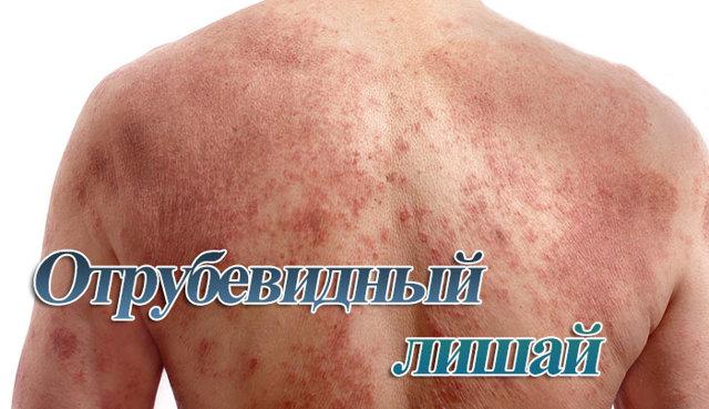 Отрубевидный лишай у человека: симптомы и эффективное лечение