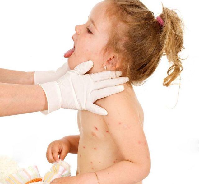 Ветрянка у детей: инкубационный период, первые признаки и симптомы (фото)