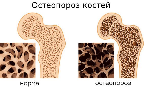 Болезнь Иценко-Кушинга: что это такое? Симптомы и лечение