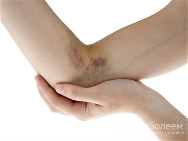 Болезнь Виллебранда: что это такое? Симптомы и лечение