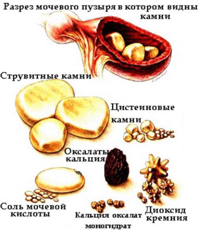 Мочекаменная болезнь: симптомы и способы лечения в домашних условиях