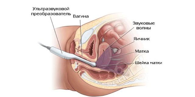 Эндометриоз матки, что это такое