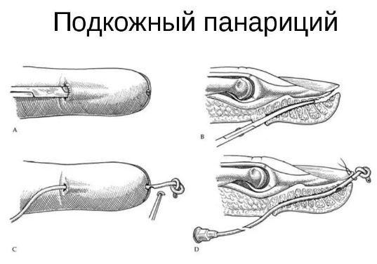 Панариций пальца на руке: симптомы, фото и способы лечения