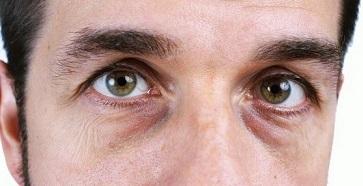 Как быстро избавиться от темных кругов под глазами за 2 дня