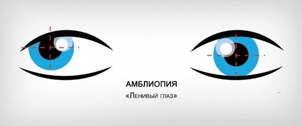 Амблиопия глаза: симптомы и программа для лечения