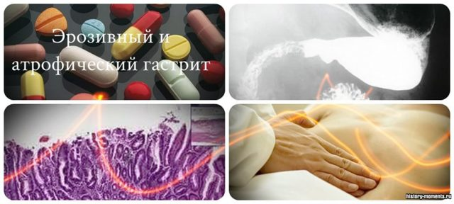 Атрофический гастрит: симптомы и схема лечения