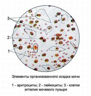Почему у женщин лейкоциты в моче повышены