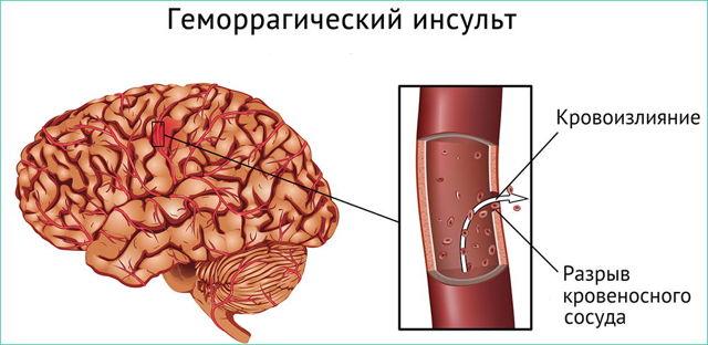 Геморрагический инсульт: что это такое? Симптомы, лечение и прогноз