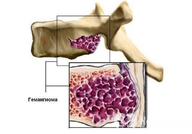 Гемангиома позвоночника: что это такое, лечение и причины возникновения