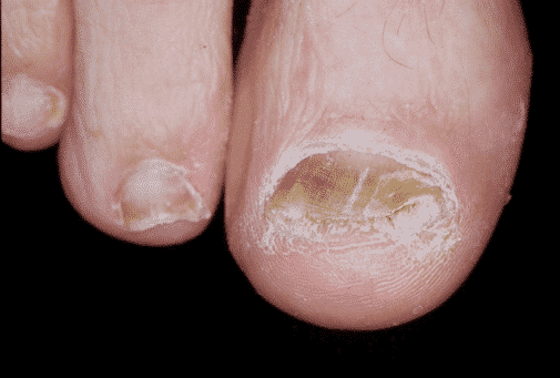 Как выглядит грибок ногтей на ногах, симптомы и способы лечения