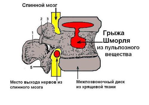 Грыжа Шморля, что это такое и как лечить? Фото, симптомы и способы лечения