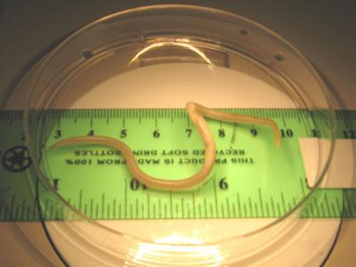 Лечение аскаридоза у взрослых, симптомы и профилактика