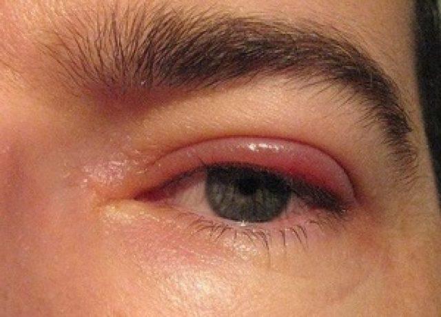 Блефарит: что это такое? Фото, симптомы и лечение