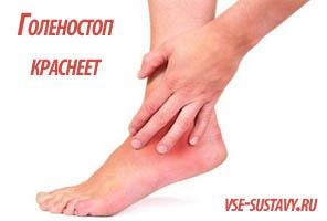 Лечение артрита голеностопного сустава, первые симптомы и фото