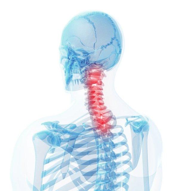 Головная боль напряжения, симптомы и способы лечения