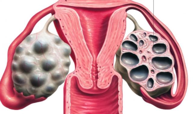 Поликистоз яичников, что это такое? Симптомы и лечение