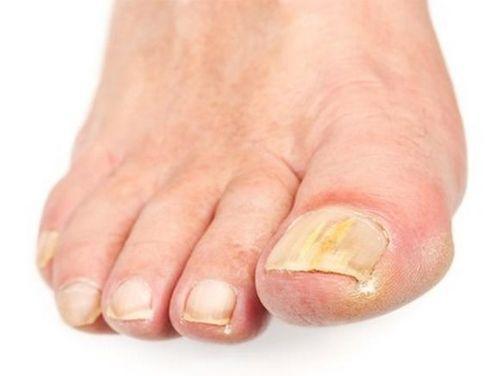 Экзодерил, инструкция по применению от грибка ногтей